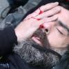 Διαδηλωτής των Κίτρινων Γιλέκων έχασε το μάτι του από χειροβομβίδα! (vid)