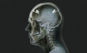 Η συσκευή που μπορεί και διαβάζει τις σκέψεις