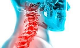 Αυχενικό σύνδρομο: πώς αντιμετωπίζεται (vid)