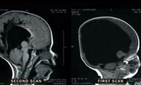 Αγοράκι που γεννήθηκε χωρίς εγκέφαλο μπορεί και μετράει! (vid)