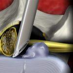 Ενδοσκοπική δισκεκτομή δίνει λύση σε παθήσεις της σπονδυλικής στήλης