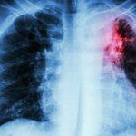 Ψευδής η εντύπωση ότι η φυματίωση έχει εξαλειφθεί